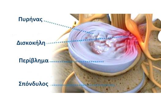 Δισκοκήλη: Θεραπεία με LASER χαμηλής ισχύος