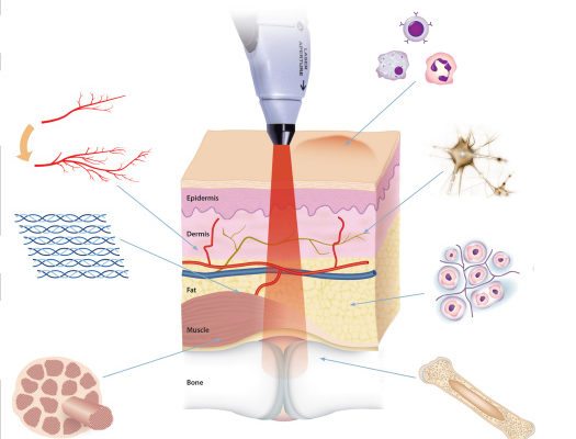 Θεραπευτικά LASER: Ένα υπερόπλο στην Θεραπεία και Αποκατάσταση