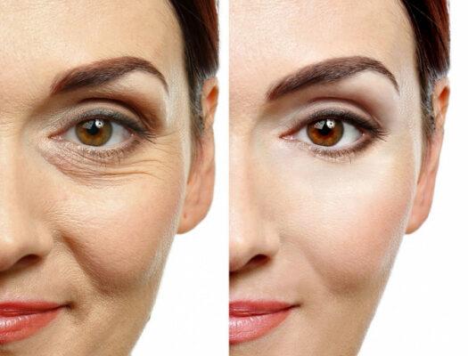 Ψυχρά LASER για αντιγήρανση, ανάπλαση και θεραπεία του δέρματος – Μέρος 1ο