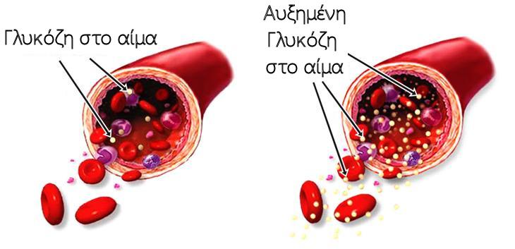 Αύξηση γλυκόζης στο αίμα