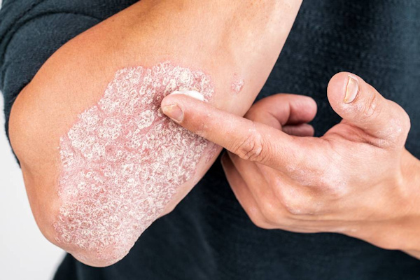 Ψωρίαση - Θεραπευτική αντιμέτωπιση με ψυχρά laser